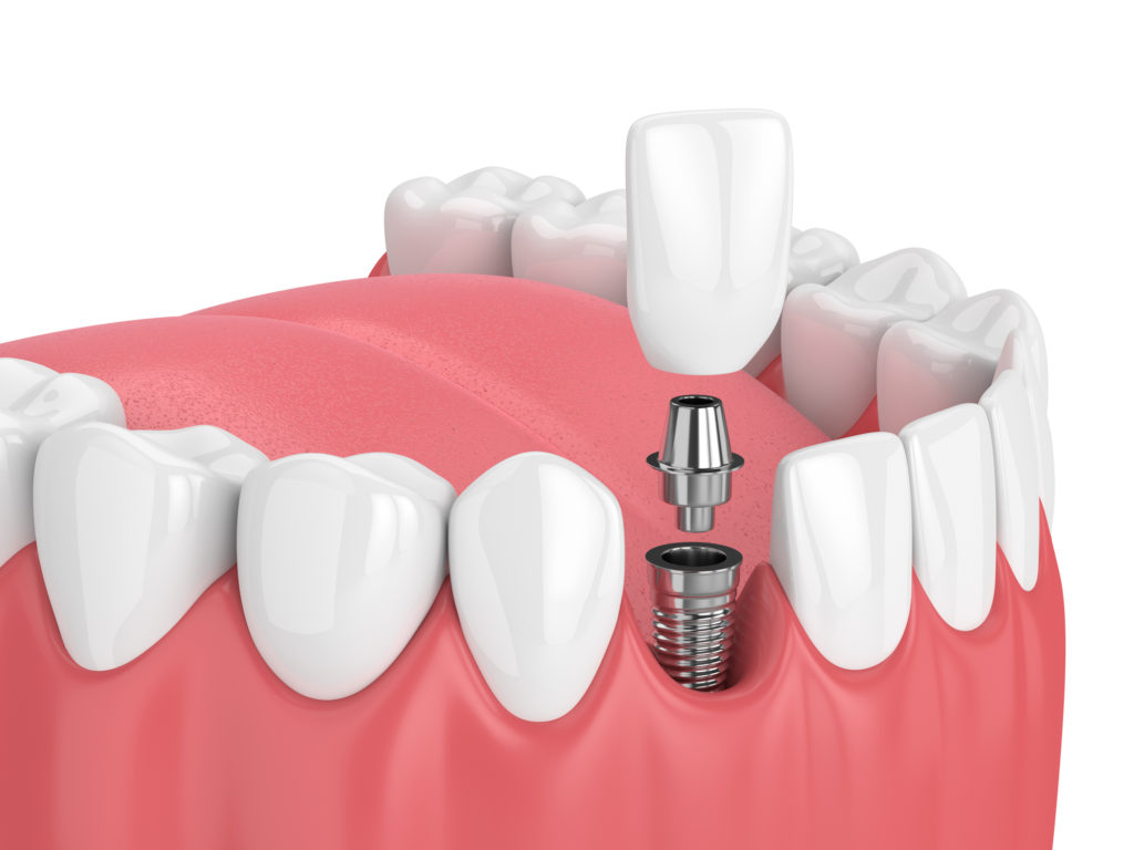 Nashoba family dentists, dental implants