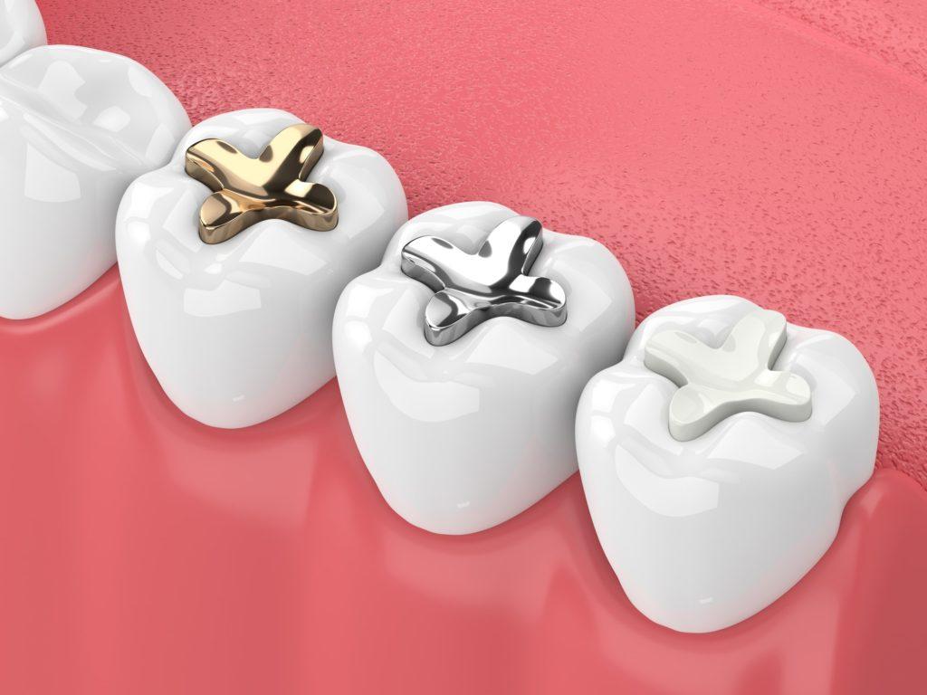 Nashoba family dentists, tooth fillings, tooth sealants, preventative dental care