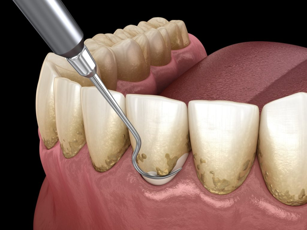 Illustration of a bottom row of teeth with a dental pick scraping plaque off them