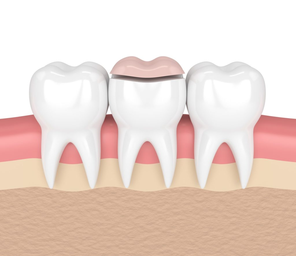 Illustration of a row of three teeth with a dental inlay being applied to the middle tooth