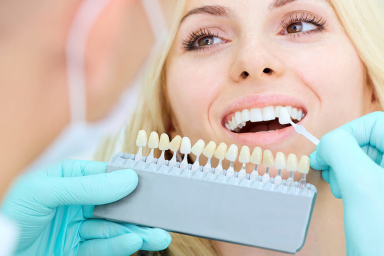 A dentist holds a tooth whitening scale up to a female patient's teeth to compare degrees of whiteness